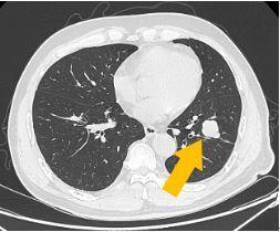 「膀」通曲畅 ‖ 赫赛汀治疗复发转移性膀胱癌一例