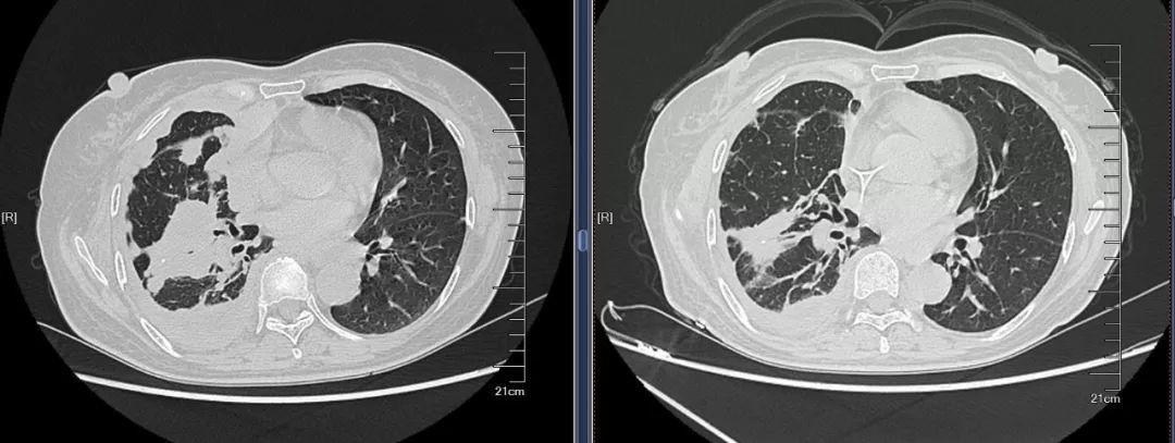 胸膜广泛转移: TOMO放疗+抗血管生成