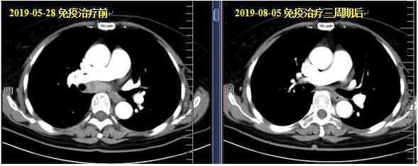 病例快讯:晚期宫颈鳞癌(新抗原纳米疫苗+PD-1抗体)治疗有效!