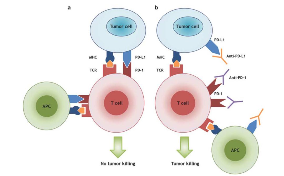 软组织肉瘤的免疫治疗系列(二):免疫检查点治疗