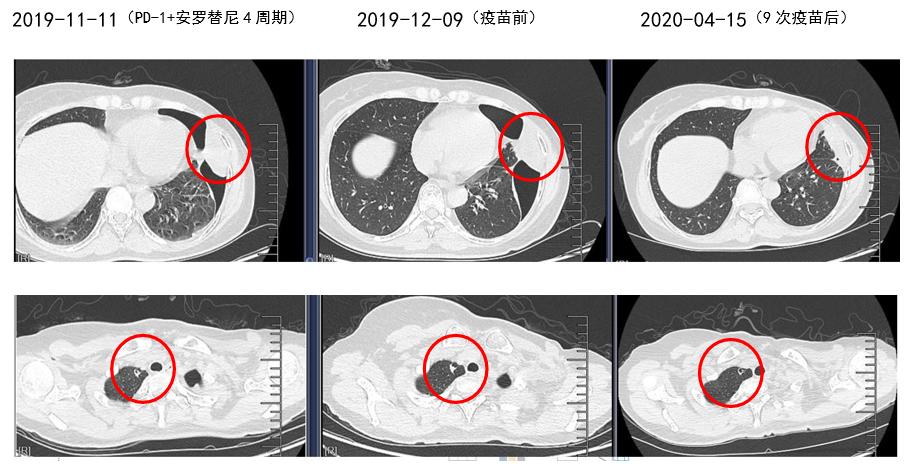 乳腺梭形细胞肉瘤:新抗原肽纳米疫苗为基础的综合免疫治疗达病理完全缓解