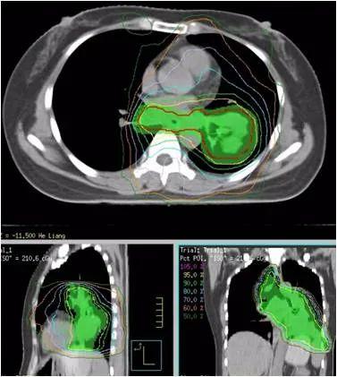 病例分享:新免疫整合治疗模式成功治疗转移性宫颈鳞癌