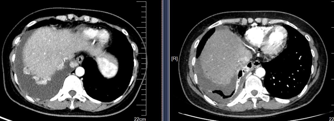 病例分享:晚期宫颈腺癌的免疫整合治疗-谁的作用?