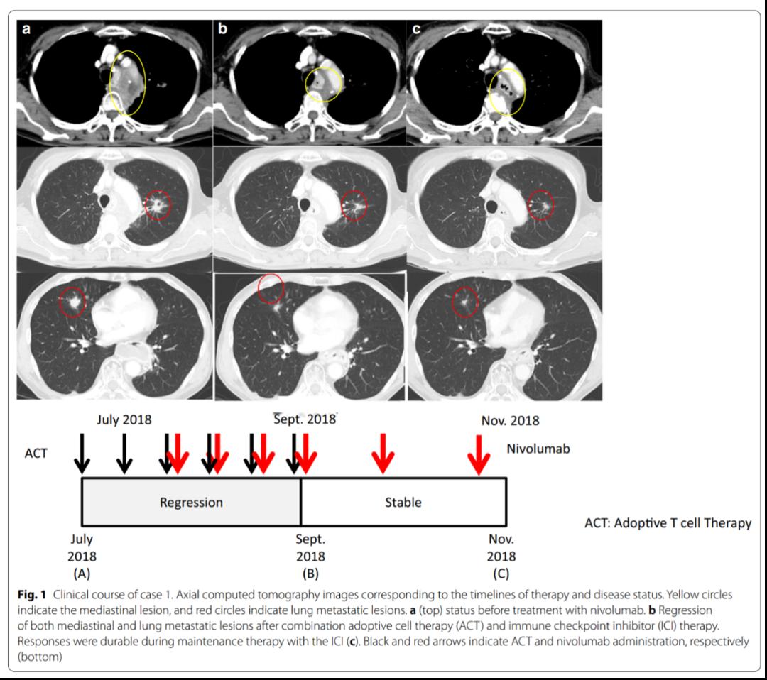日本个案:免疫细胞疗法联合小剂量PD-1单抗治疗食管鳞癌